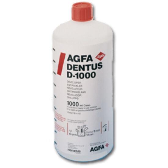 Agfa Dentus D-1000 előhívó 1 L